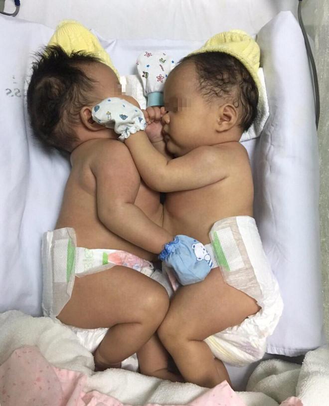 ホーチミン:結合双生児分離手術に成功、第1小児病院 [社会 ...