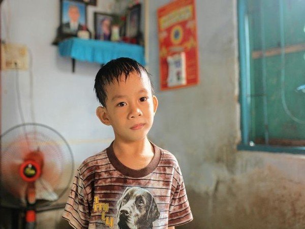 分離手術から7年、結合双生児の片割れを亡くした少年の今 [特集 ...